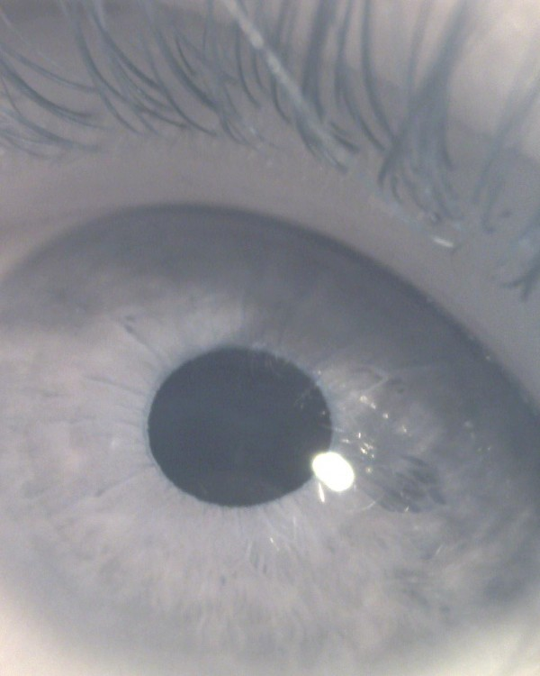 Black and white microscope image of my eye