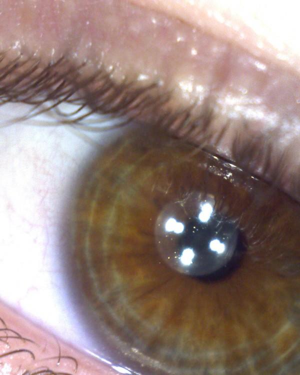 Coloured illuminated microscope image of my eye